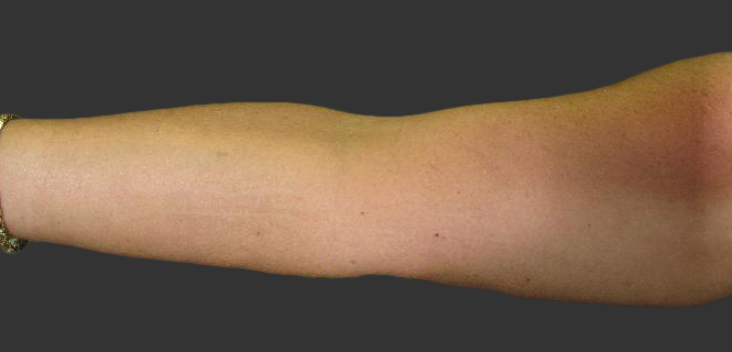 exilis_salzman_arm_right_sharron_after