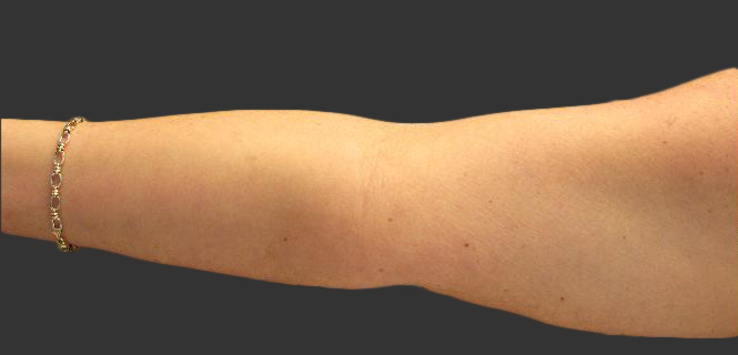 exilis_salzman_arm_right_sharron_before