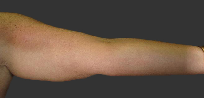 exilis_salzman_arm_sharron_after