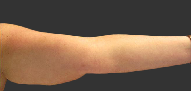 exilis_salzman_arm_sharron_before
