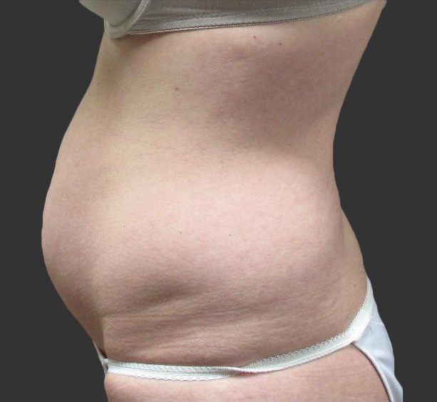 exilis_salzman_belly_left_miller_before