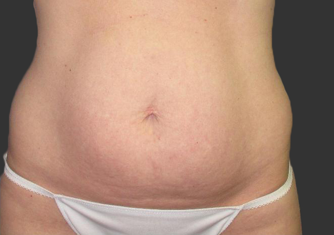 exilis_salzman_belly_miller_after
