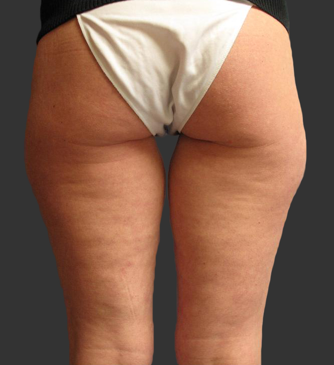 exilis_salzman_buttocks__miller_before