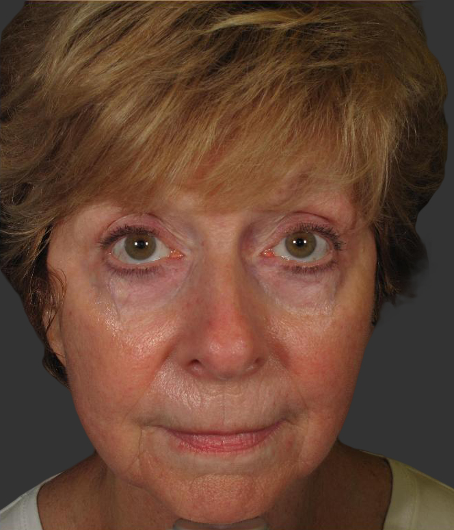 exilis_salzman_face_front_after