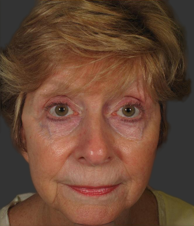 exilis_salzman_face_front_before