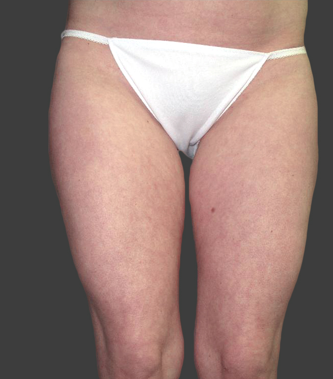 exilis_salzman_thighs_miller_after