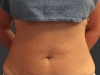 exilis_salzman_belly_sharron_before