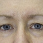 exilis after photo eyes