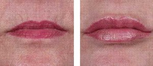 Exilis Before and After Lips